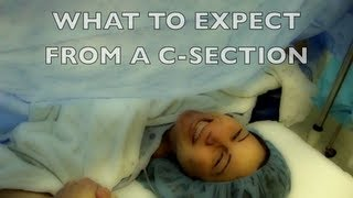 What To Expect from a C-section- If You're Scared
