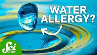 7 of the Strangest Allergies