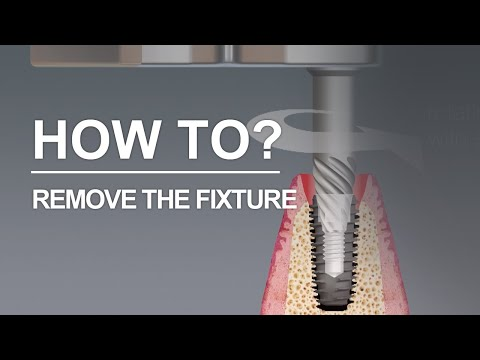 implant fixture that needs to be removed? Dr. SOS Plus is here