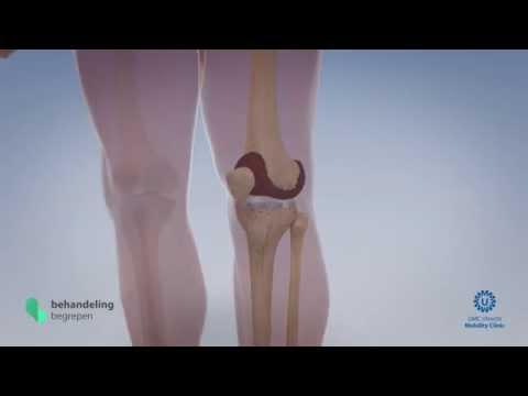 Rückenschmerzen mit links