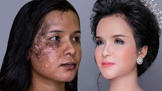 Da Lang Ben,Nám,Môi Thâm Đen Trang Điểm Sao Cho Đẹp?/ Hùng Việt Makeup