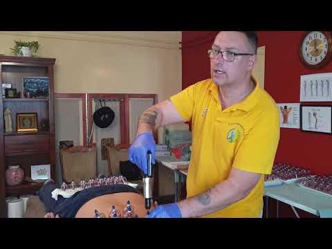 Artrózis kefe tünetek kezelése