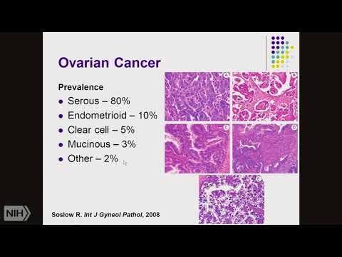 Hpv positive oropharyngeal cancer staging