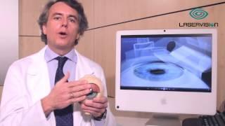 Técnica Lasik convencional para operar miopia, hipermetropia y astigmatismo en ojo - Clínica Oftalmológica Laservisión Doctor López Castro
