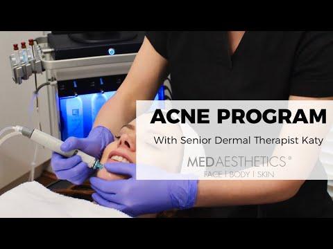 Acne Program - Medaesthetics