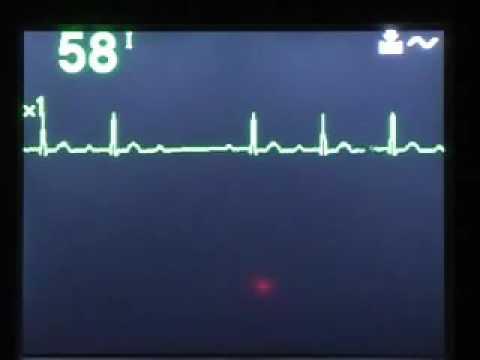 Krvni tlak monitor 777 ua kupiti u St. Petersburgu