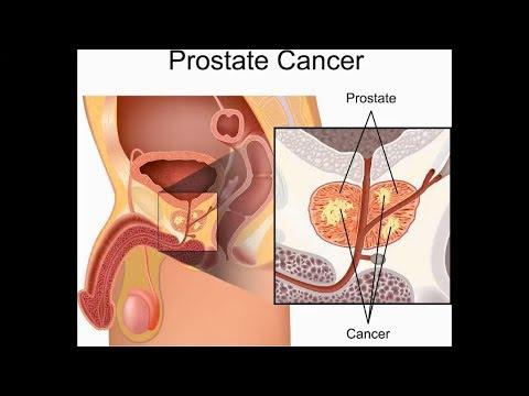 Adherencias en la foto de la glándula prostática