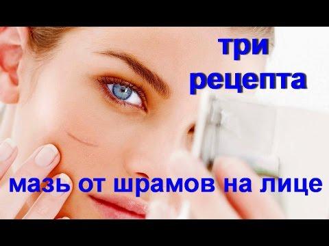 Прополис лечение аденомы предстательной железы