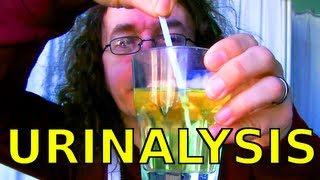 What Urinalysis Strips Tell You