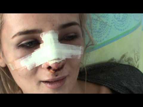 Capsule de la sforăitul și varicoza din yanang
