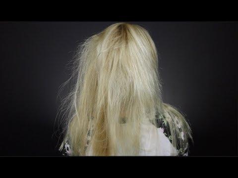 Das System vom Haarausfall