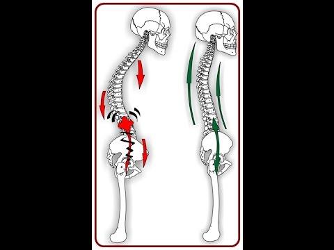 Osteochondrose ist ein Versicherungsfall