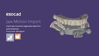 Exocad VALLETTA 2.2 Jaw Motion Import