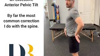 Low Back Pain ? May need to correct that anterior pelvic tilt!