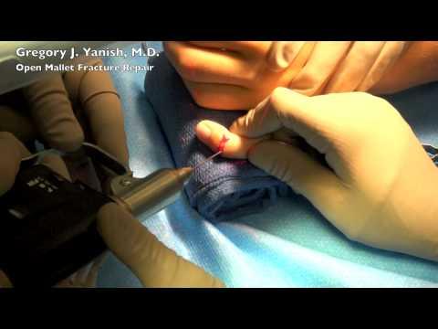 Naprawa uszkodzonego ścięgna prostownika palca - palec młoteczkowaty