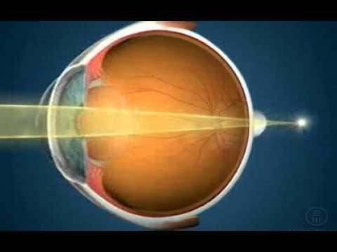 Recenzii îmbunătățite ale vederii