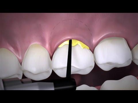 Periodontitis Management