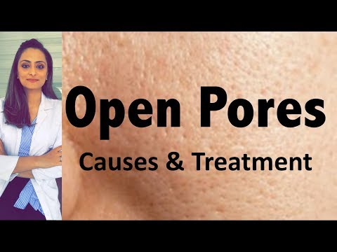 Open Pores:  Causes & Treatment | Dermatologist's Opinion Mp3