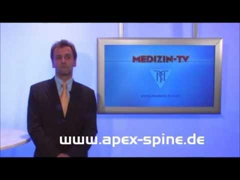 Rückenschmerzen medizinische Beratung
