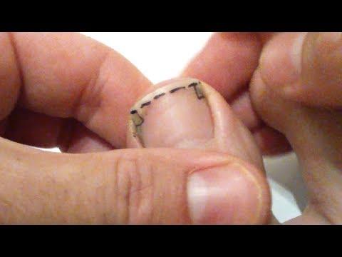 Comment se couper les ongles de pied pour éviter tout ongle incarné