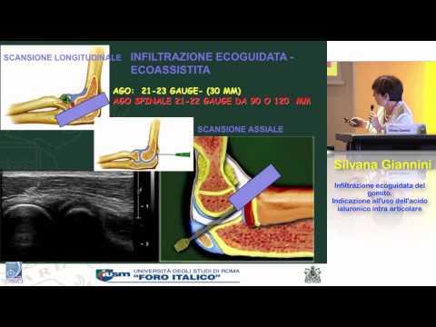 Che per il trattamento di osteocondrosi di un reparto cervicale della spina dorsale di un video