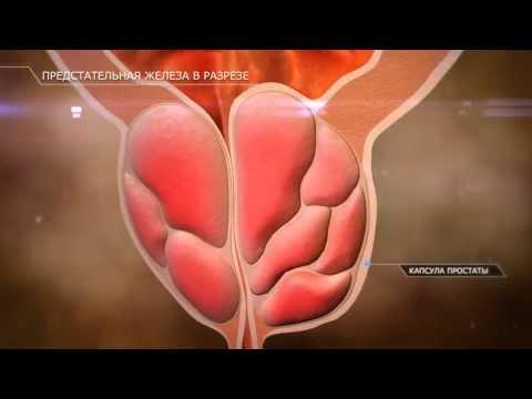 Кальцинат ткани предстательной железы