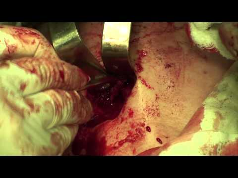 Хронический остеомиелит. Лечение