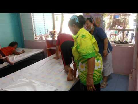 การรักษา Gafarov พิกลพิการเท้าในเด็ก