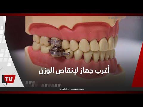 يقفل الأسنان».. تعرف على أغرب جهاز في العالم لإنقاص الوزن»