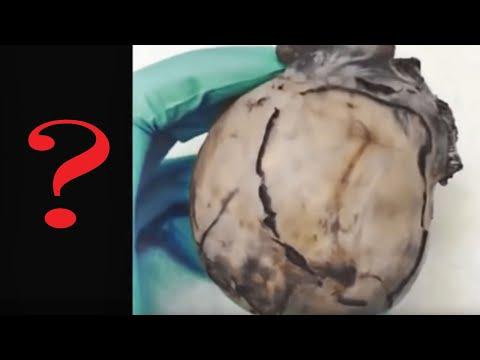 Kung saan upang masuri para sa mga parasito sa feces