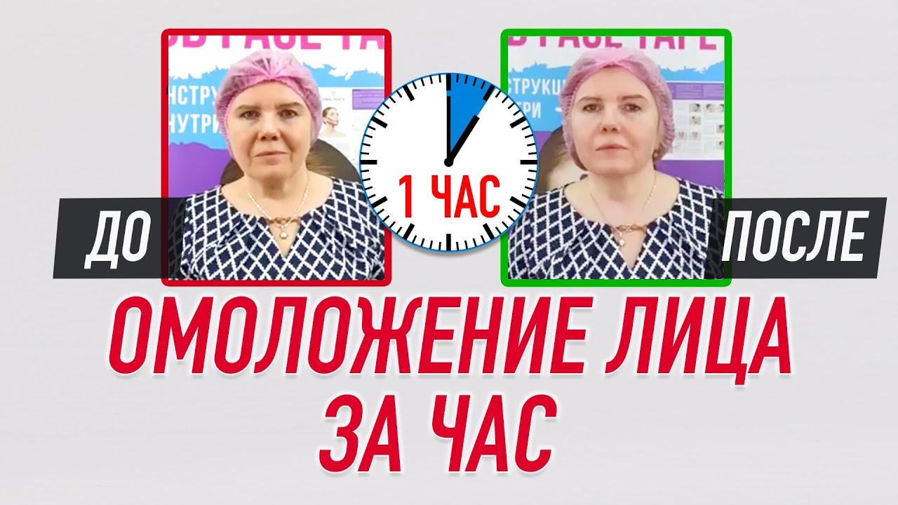 Набор кинезио тейпов для лица 2,5 см × 10 м шелк бежевый Фото 6
