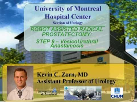 Radykalna prostatektomia w asyście robota chirurgicznego - etap 9