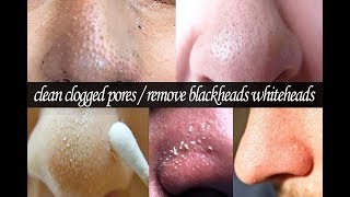 How To Clean Clogged Pores   How to get rid of blackheads and Whiteheads