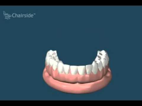 Имплантация и протезирование при полном отсутствии зубов