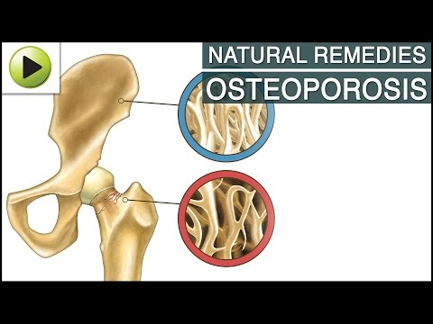 Video Aches & Pains - Osteoporosis - Natural Ayurvedic Home Remedies