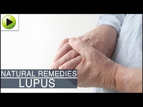 Video Home Remedies for Lupus