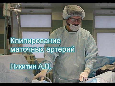 Клипирование маточных артерий