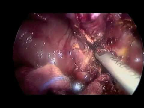 Mat in osteocondrosi della zona lombare