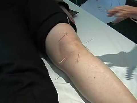 Balsamo gel per le articolazioni 911 composizione di condroitina