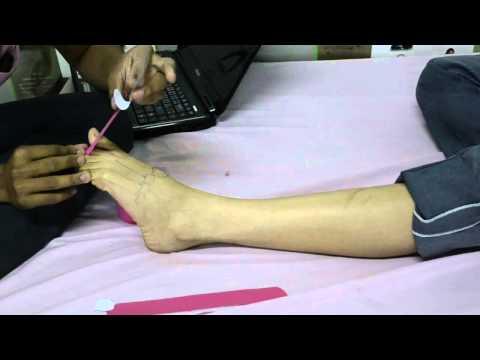 การวินิจฉัยโรคเท้าแบน valgus