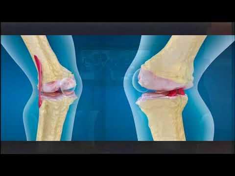 Per migliorare la mobilità delle articolazioni