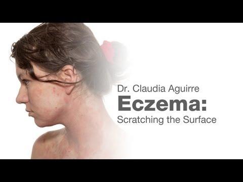 Origine di dermatite atopic