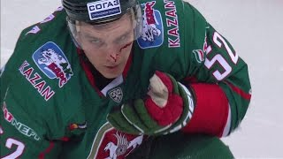 Semin cuts Ohtamaa face with his stick