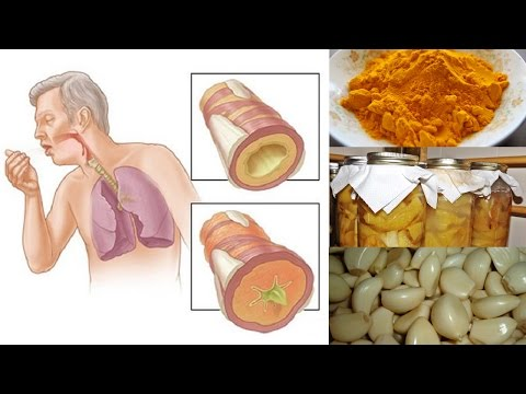 Video Natural Remedies for Chest Congestion Relief | Natural Cures
