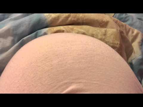 Ernia di reparto cervicale mkb