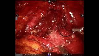 Anastomosi con sutura continua