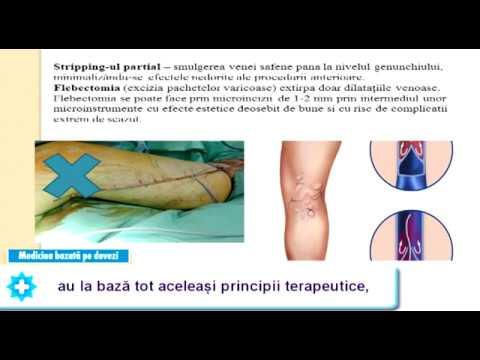 Terapia cu infuzie cu lichide varicoase
