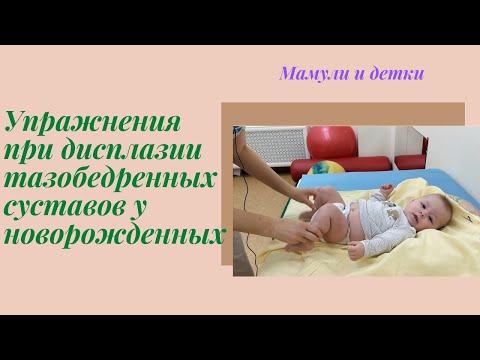 Упражнения при дисплазии тазобедренных суставов у новорожденного I Мамули и детки