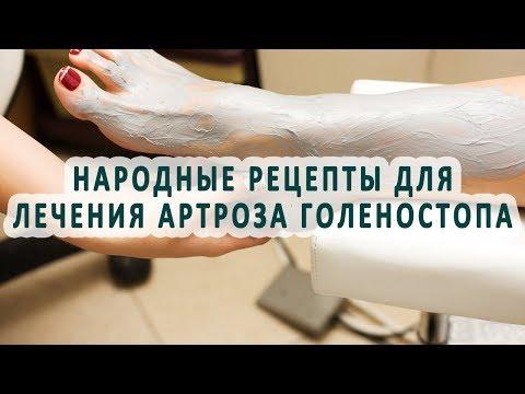 Народные рецепты для лечения артроза голеностопного сустава