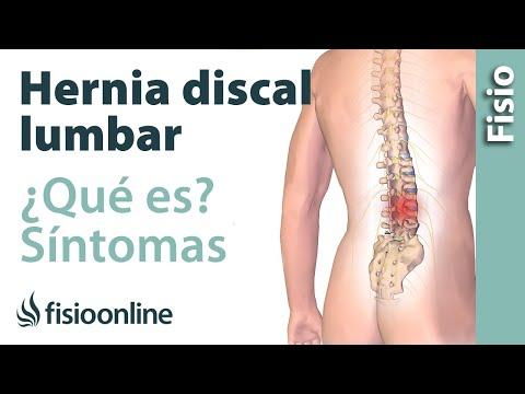 Cómo tratar el entumecimiento de las manos de la enfermedad degenerativa del disco cervical